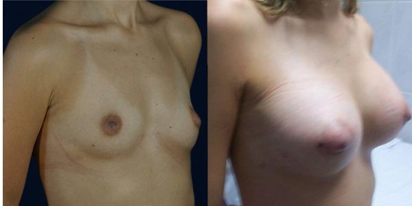 mamas de aumento