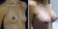 mamas de aumentot